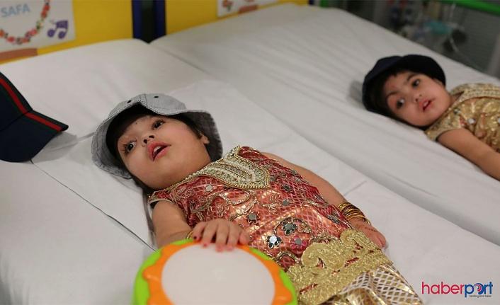 Pakistanlı siyam ikizleri 50 saatlik ameliyatla birbirinden ayrıldı
