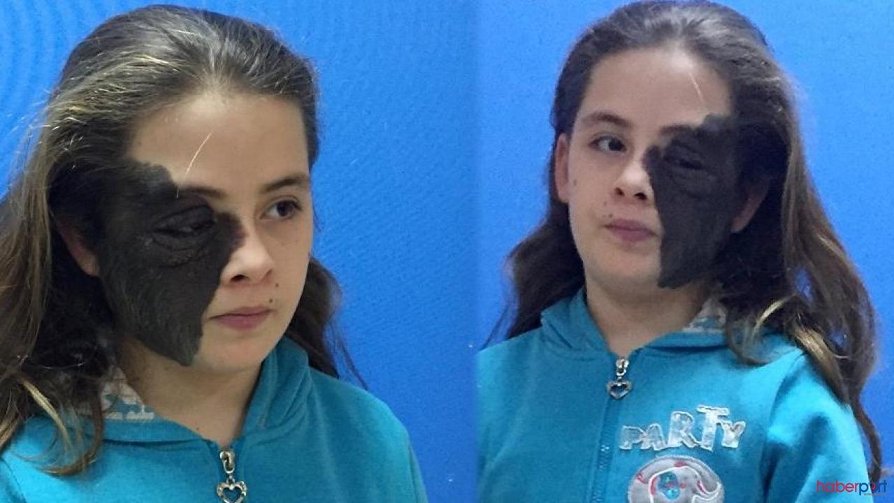 11 yaşındaki Nazlı doğuştan yüzünün yarısının kaplayan ben'den kurtuluyor