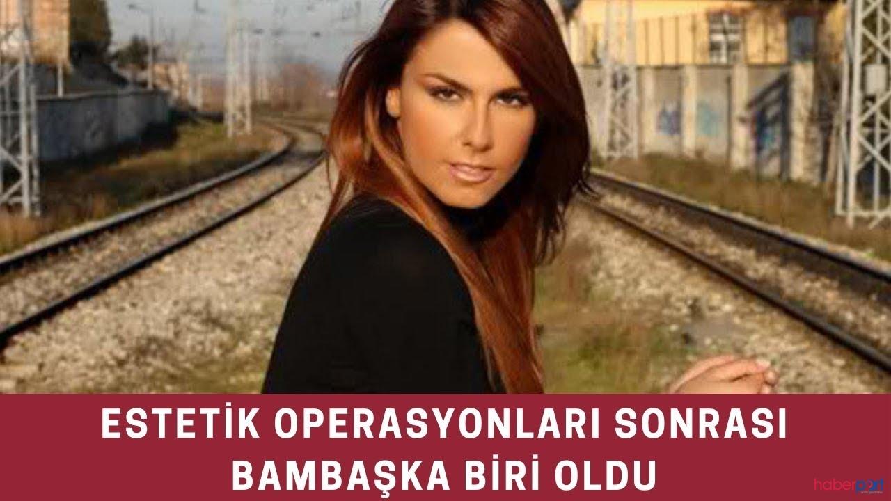 Adanalı dizisinin Pınar'ı Tuğçe Özbudak son haliyle dikkat çekti