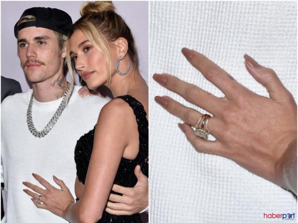 Hailey Baldwin Bieber'den genetik hastalık açıklaması