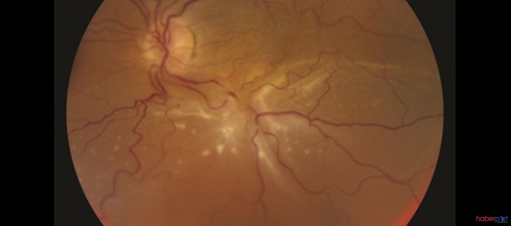 Retina Dekolmanı Belirtileri Nelerdir