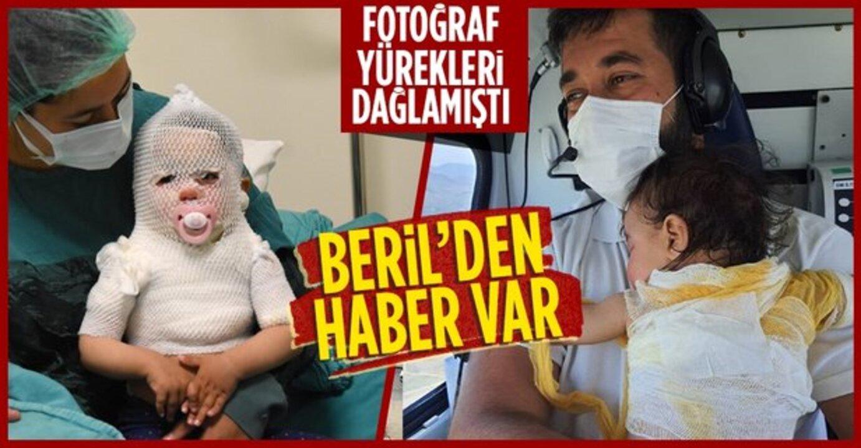 Tüm Türkiye'yi duygulandıran Beril bebekten haber var!