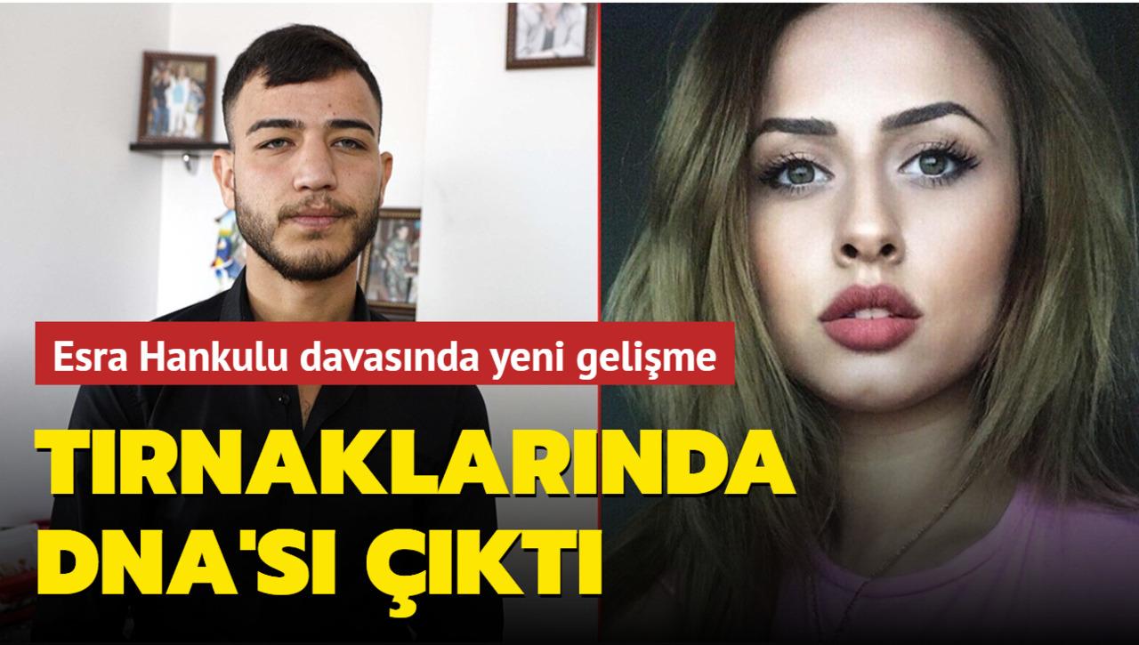 Adli Tıp Raporu sonuçlandı: Ümitcan Uygun'un DNA'sı Esra Hankulu'nun tırnaklarında çıktı!