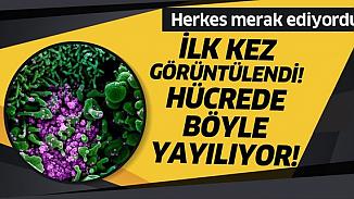 Koronavirüsünün insan hücrelerindeki yayılışı mikroskopla görüntülendi