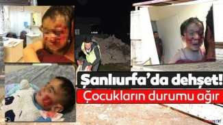 Şanlıurfa korkunç olay! Sokak köpekleri çocuklara saldırdı! 3 ağır yaralı