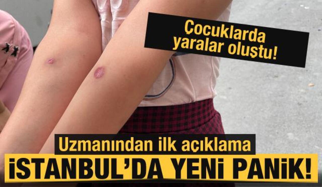 İstanbul'da enfeksiyon oluşturan sivrisinekler panik yarattı!