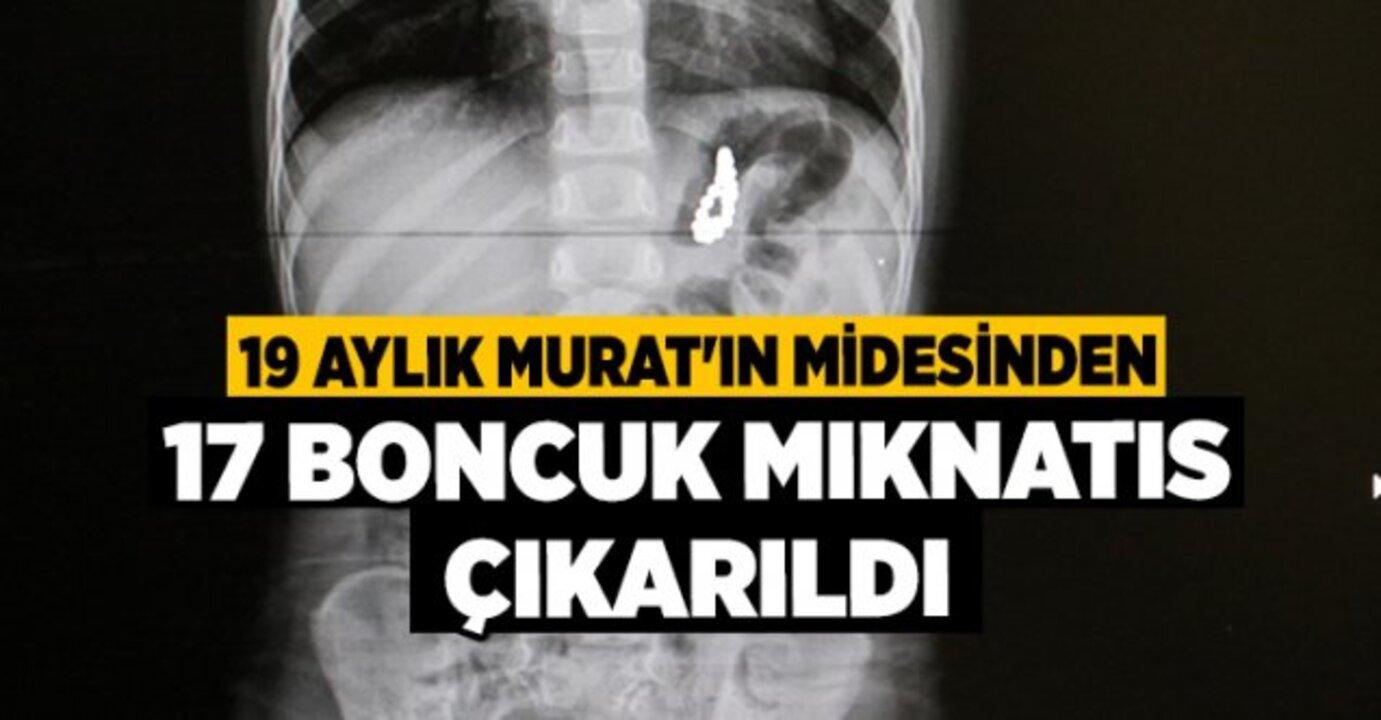 17 mıknatıs yutan minik Murat, operasyonla kurtarıldı